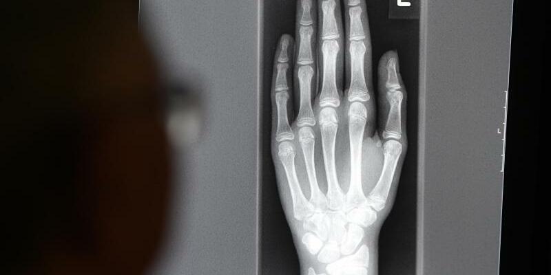 Röntgenbild einer Hand - Foto: Felix Kästle