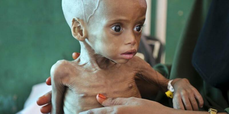 Hungersnot in Somalia - Foto: Mohamed Sheikh Nor
