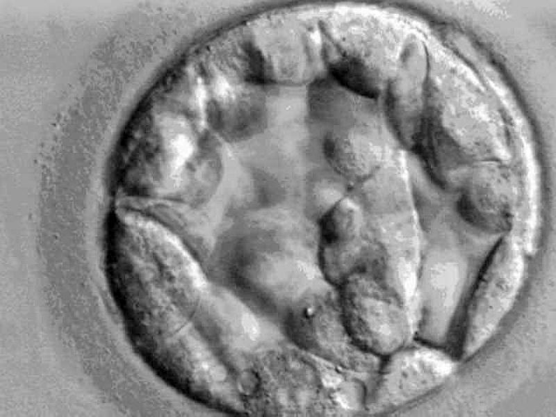 Embryo - Foto: über dts Nachrichtenagentur