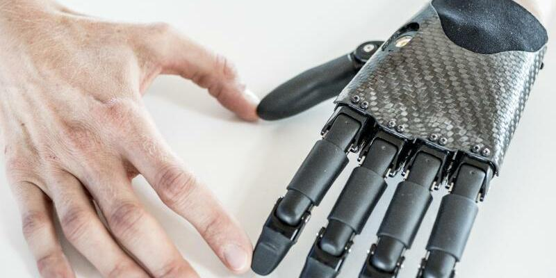 Deutscher Zukunftspreis - Foto: Ingenieure haben eine leichte und kleine Handprothese für Kinder und Jugendliche entwickelt, bei der einzelne Finger aktiv bewegt werden können. Foto:Ansgar Pudenz/Deutscher Zukunftspreis