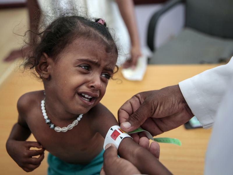 Hungersnot - Foto: Ein Arzt misst den Armumfang eines unterernährten Mädchens im jemenitischen Haddscha. Die Vereinten Nationen bezeichnen den Krieg im Jemen als die größte humanitäre Katastrophe der Gegenwart; etwa 22 Millionen Menschen seien auf Hilfe angewiesen. Zudem is