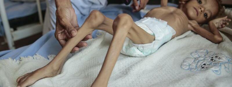 Elend im Jemen - Foto: Hani Mohammed/AP