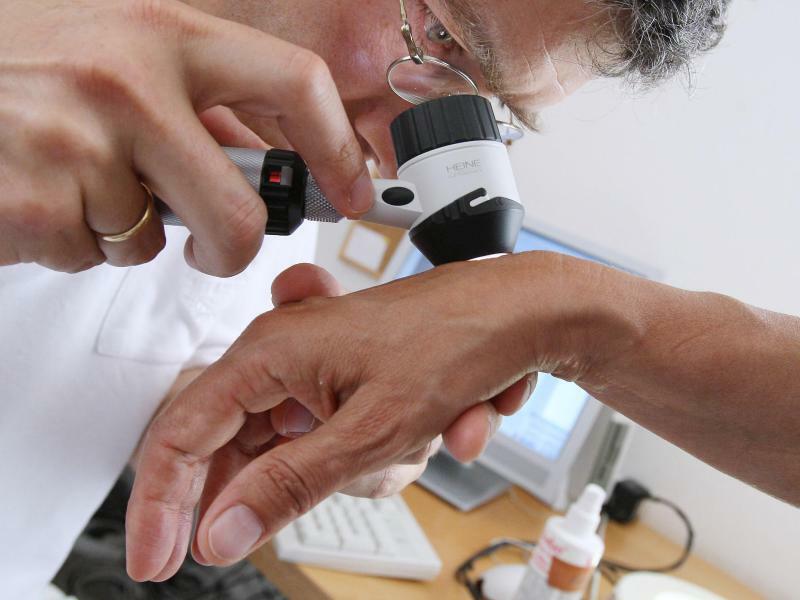 Hautkrebs-Früherkennung - Foto: Karl-Josef Hildenbrand