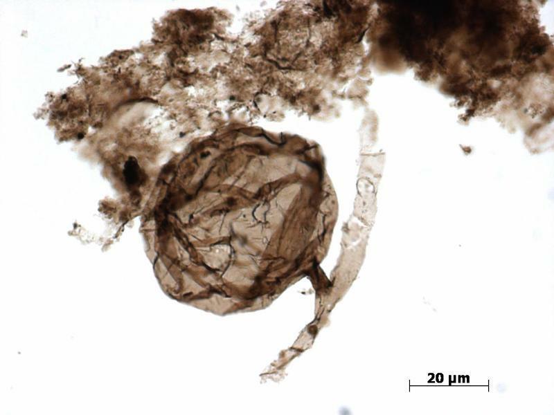 Ältestes Pilzfossil entdeckt - Foto: Mikroskopische Aufnahme von einem «Ourasphaira giraldae». Forscher haben Fossilien von rund eine Milliarde Jahre alten Pilzen entdeckt. Es handelt sich mit Abstand um den ältesten eindeutig datierten Nachweis der Lebewesen. Foto:Corentin C Loron/Universi