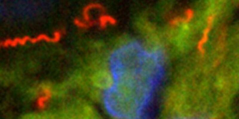 Erreger der Syphilis - Foto: PD Dr. Annette Moter/Charite-Universitätsmedizin Berlin/dpa