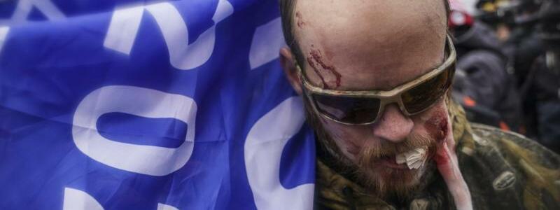 Verletzter Demonstrant - Foto: John Minchillo/AP/dpa