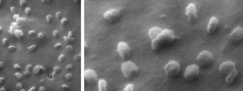 Nano-Aufnahmen von Coronaviren - Foto: Natalie Frese/Universit?t Bielefeld/dpa